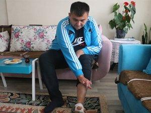 İş kazasında kaybettiği el parmaklarının yerine ayak parmakları nakledildi